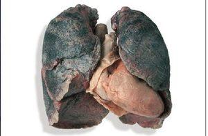 Những lá phổi đen không phải có nguyên nhân từ khói thuốc lá (Ảnh: Smoking Science)