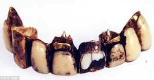 Hitler's teeth